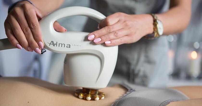 Alma Accent Prime TM